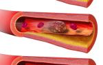 Кровяной сгусток выкидыш